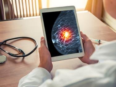 Google crée une IA plus forte que les médecins pour dépister le cancer du sein