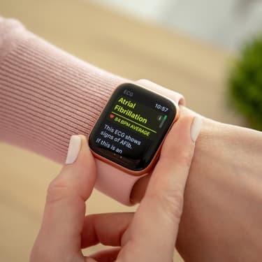 Bientôt deux nouvelles Apple Watch ?